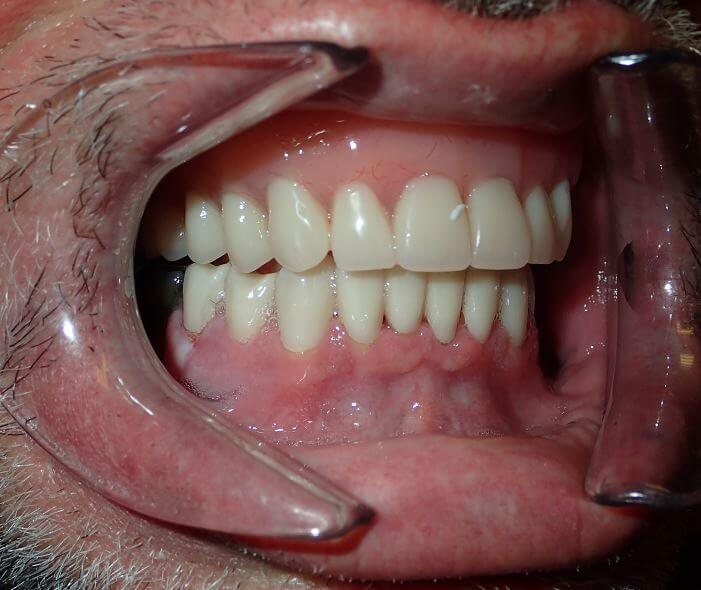 right side of patients teeth after treatment