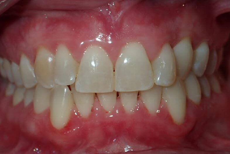 patients teeth after dental cleaning